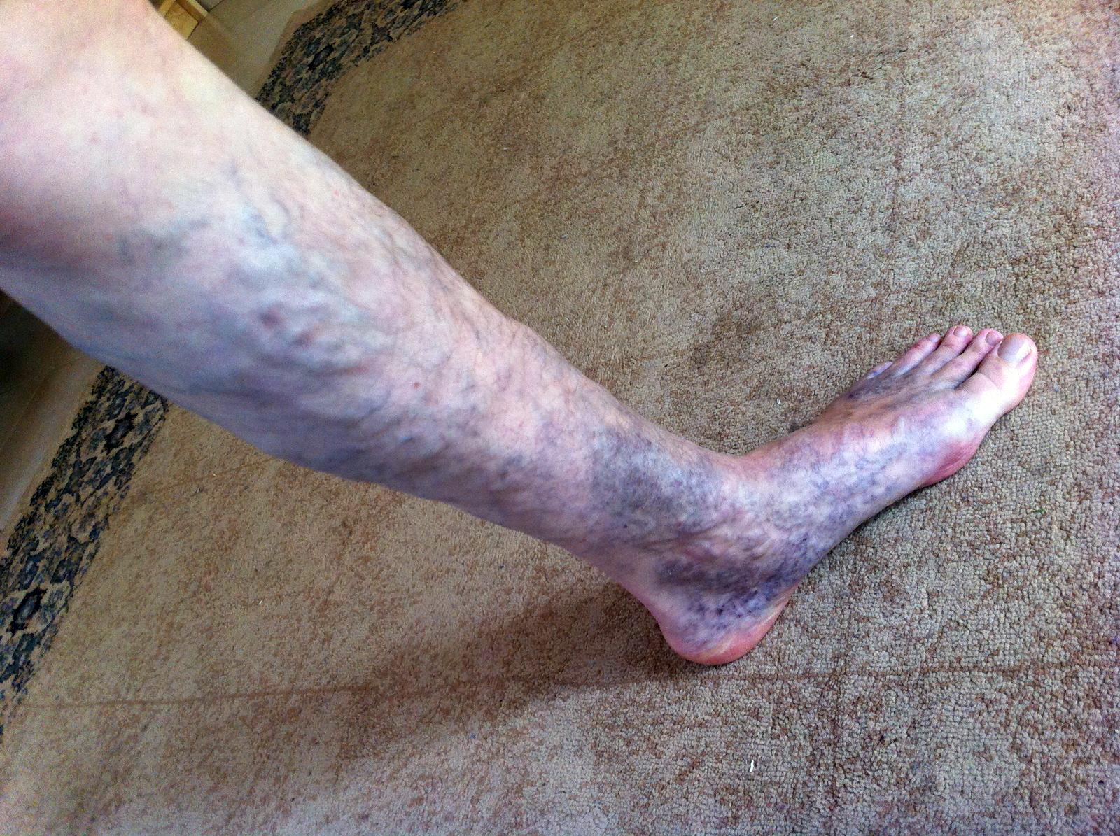 slome-cohain-left-leg-veins-2